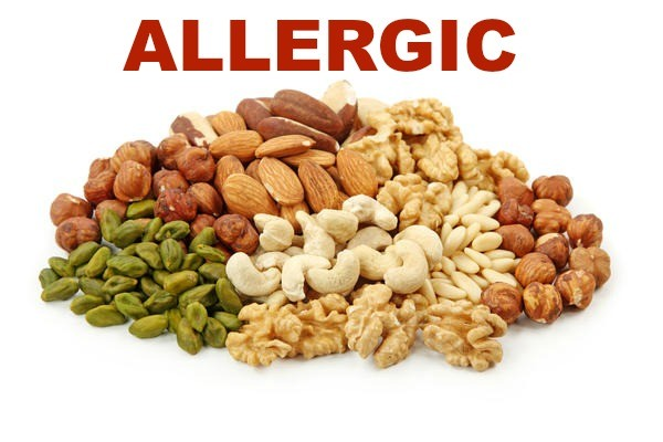 Navigating life with food allergies
