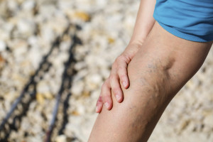 Varicose Veins : More than a Cosmetic Concern | Denver Metro Moms Blog