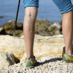 Varicose Veins: More Than a Cosmetic Concern