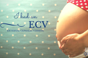 I Had an ECV | Denver Metro Moms Blog