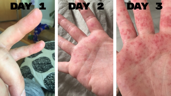 Hand Foot And Mouth Disease While Pregnant